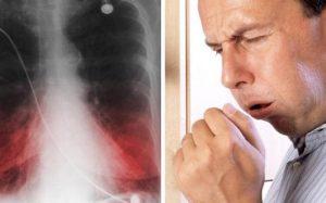 Сигаретный дым замедляет восстановление легких