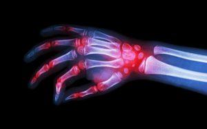 Ревматоидный артрит смогут предсказать и вылечить