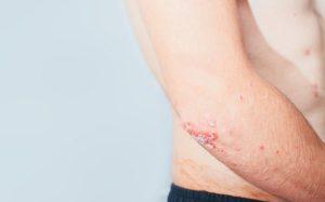Пустулёзный псориаз – самая тяжёлая форма псориаза