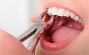 Удаление зуба: что важно знать
