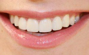 Названы продукты, разрушающие зубную эмаль
