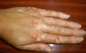 Как проявляется болезнь Реклингхаузена?