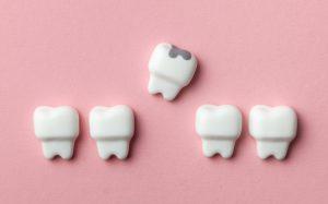 Стоматологи начнут ставить антибактериальные пломбы