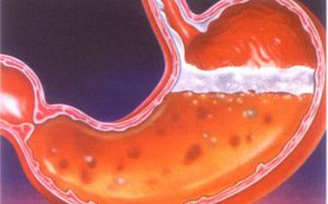 Клеточное обновление в слизистой оболочке желудка и кишечника