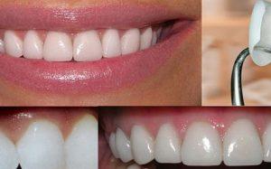 Виниры на зубы: за и против
