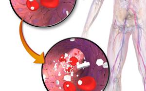 Бомба замедленного действия: Высокий уровень сахара в крови