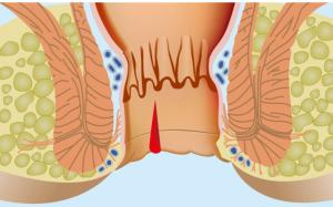 Лечение анальной трещины: действенные методы для быстрого выздоровления
