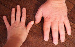 Акромегалия – что это: причины заболевания