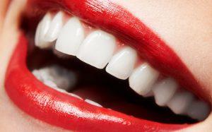 Отбеливание зубов дома: способы, которые работают