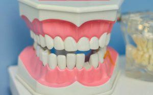 Почему нельзя чистить зубы сразу после завтрака? Отвечают эксперты