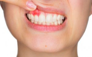 Киста на десне: болезнь зубов или десен?