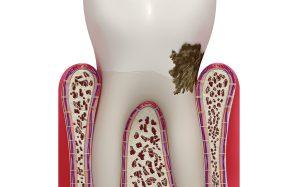 Как снять зубной камень: очищаем зубы бережно