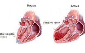 Сердечная астма: симптомы, помощь при приступе