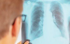 Как провести диагностику на туберкулез?