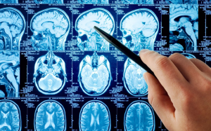 Болезнь Реклингхаузена (нейрофиброматоз): что это такое