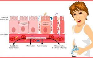 Синдром дырявого кишечника: 7 признаков, что это ваша проблема