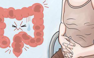 Постинфекционный синдром раздражённого кишечника
