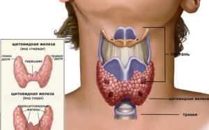 Болезни щитовидной железы, что вызывает, симптомы