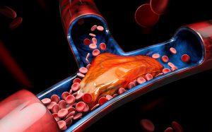 ПОАК после ишемического инсульта: когда начинать?