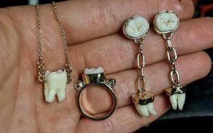 Королева Виктория сделала ношение зубов модным трендом